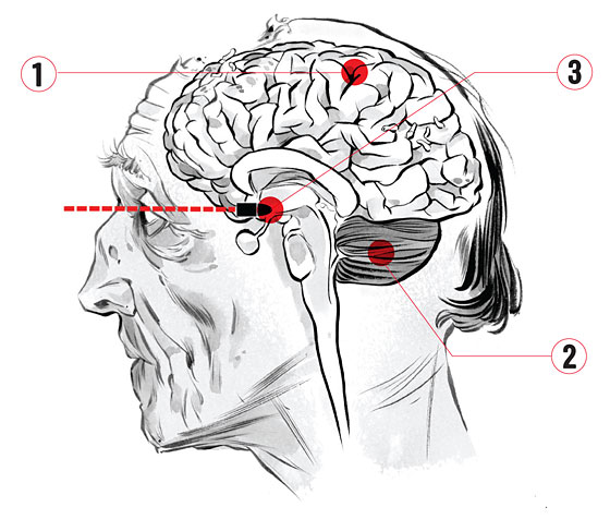 The Everything Guide To Zombies Two Neuroscientists